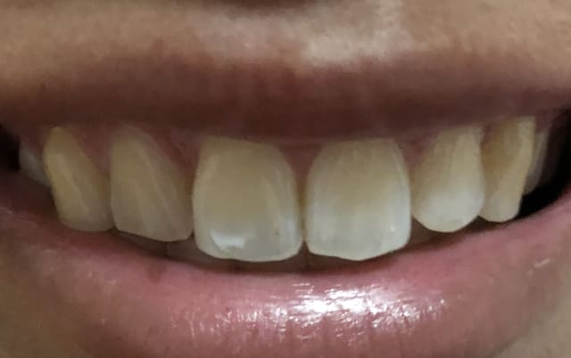 How can I get rid of white spots on my tooth? (photo)