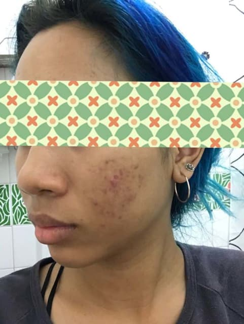 What is the best treatment for hormonal acne? (photo)