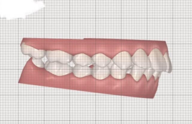 How do dentists determine the amount of space needed to fix an overbite? (photos)