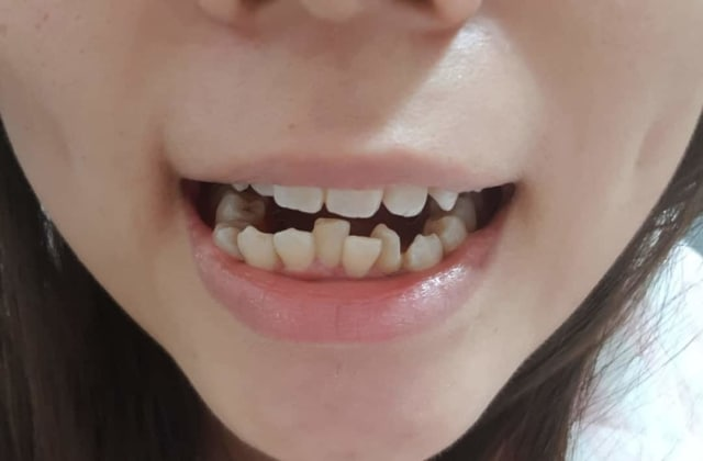 What are cost effective methods to fix crooked teeth in a 32 year old? (photo)
