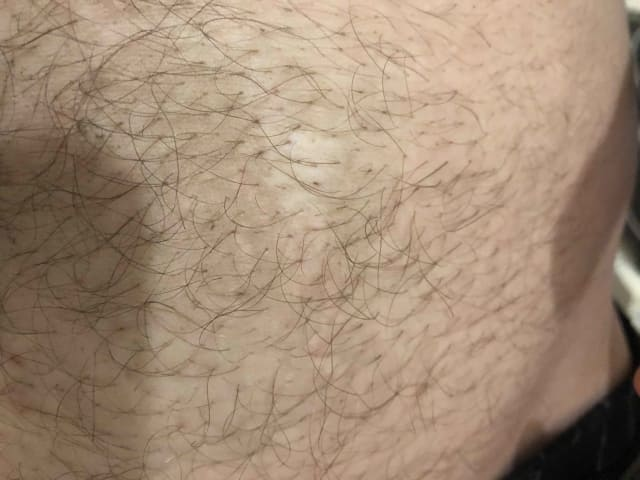 Can a C02 fractional laser or Infini RF remove a hypopigmented burn scar? (photo)