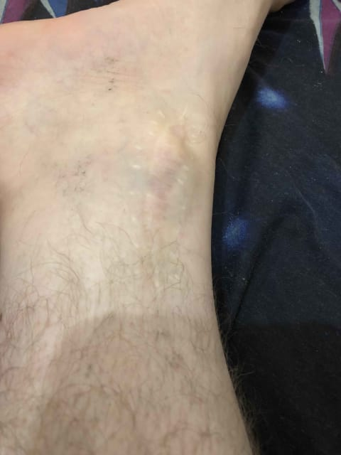 How to remove old surgical scars? (photo)
