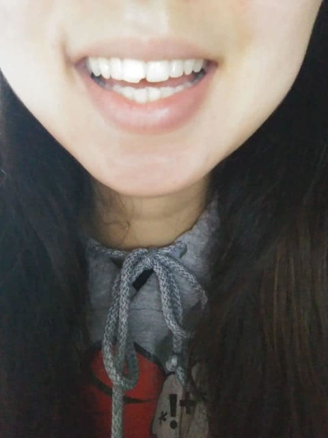 Should I go for dental bonding or veneers to repair a chipped front tooth? (photo)