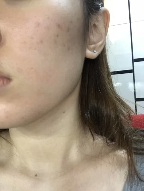 Which lasers are best for red and brown acne pigmentation on the face? (photo)