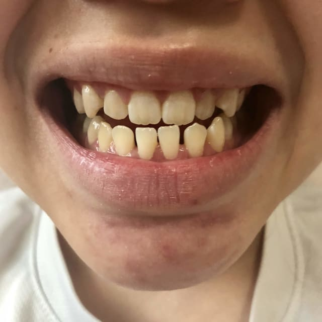 How to decide between braces or jaw surgery to fix an underbite? (photo)