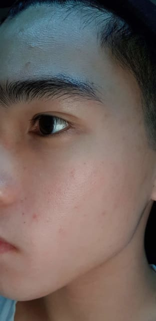 How to get rid of mild acne scars and marks? (photo)