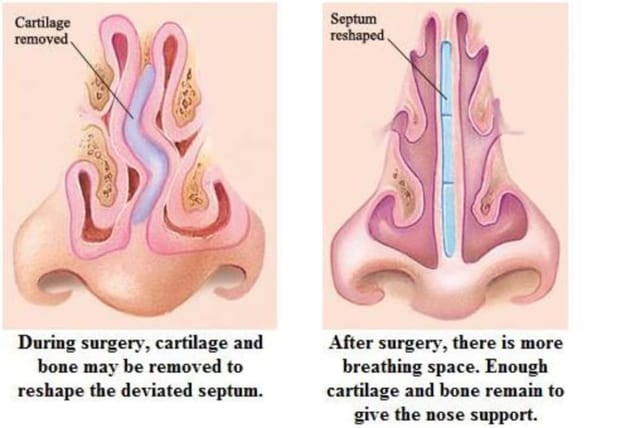 What is a septoplasty?