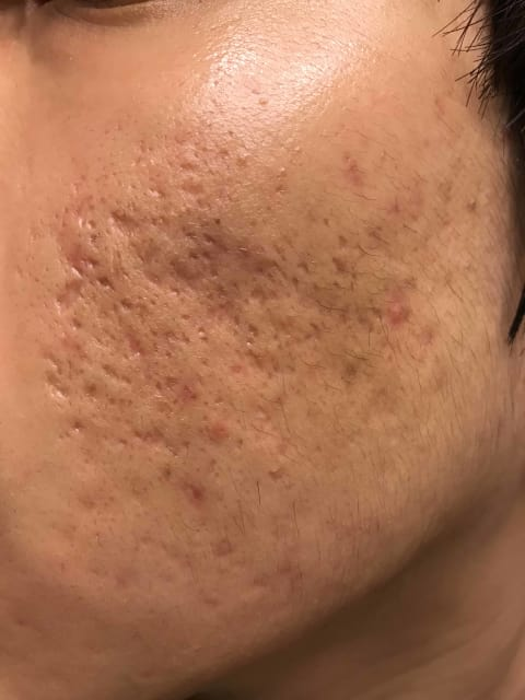 How to avoid complications after TCA CROSS treatment such as pigmentation and widening scars? (photo)