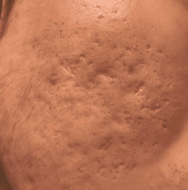 Is TCA CROSS with subcision or Intracel RF more effective for severe acne scars? (photo)