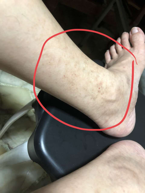 What can cause brown spots and patches appearing at my ankle and shin? (photo)