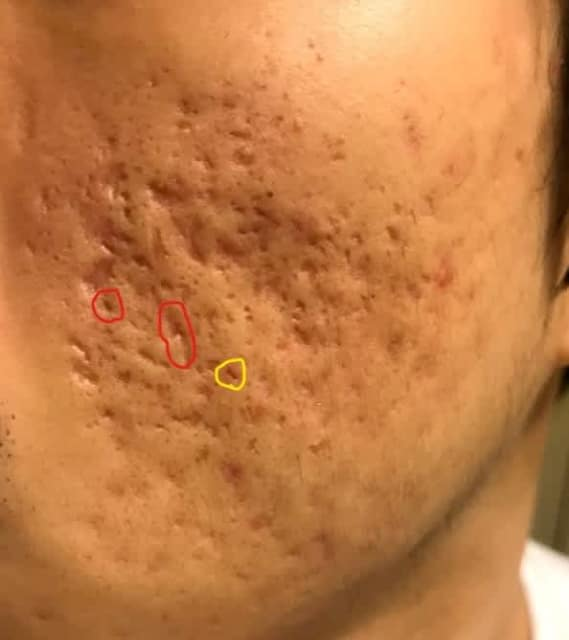 What is a recommended TCA CROSS regimen while on low dose Accutane? (photo)