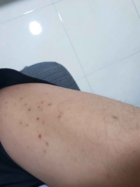 What could be the cause of red spots and raised bumps at my legs that were present since young (photo)?