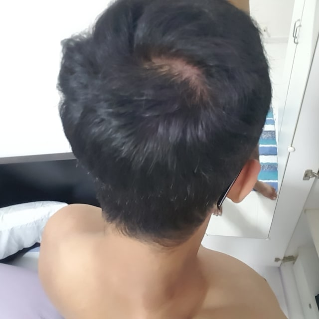 How to reverse balding patch at the top of the head in young adult males? (photo)
