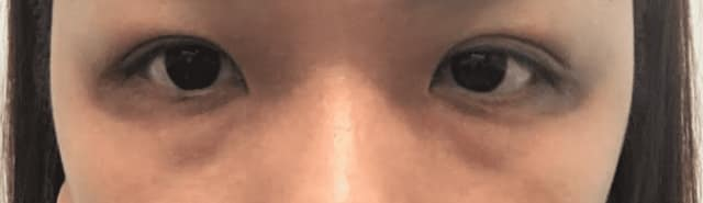 How to decide between fillers or eye bag removal to get rid of eye bags and dark eye circles? (photo)