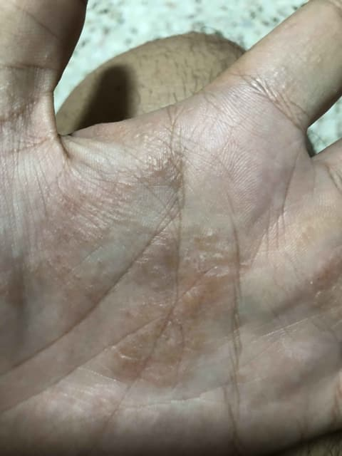 What could cause blisters at my palms and feet? (photo)