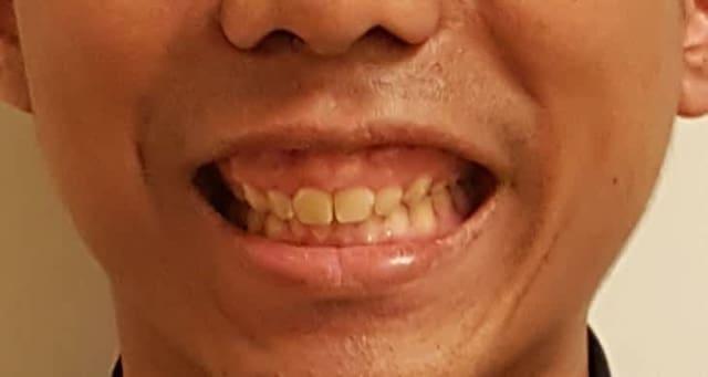 How do I fix my gummy smile without using Botox? (photo)