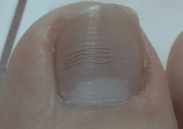 Why are there ridges on my nails? (photo)