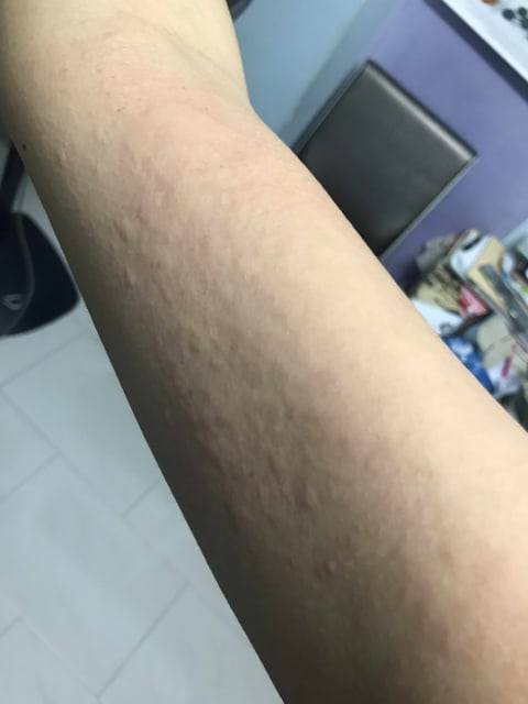 How to tell if my rashes are due to a food allergy? (photo)
