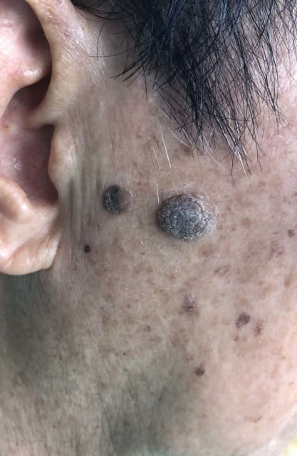 How to remove Seborrheic Keratosis, and what should I expect during removal? (photo)