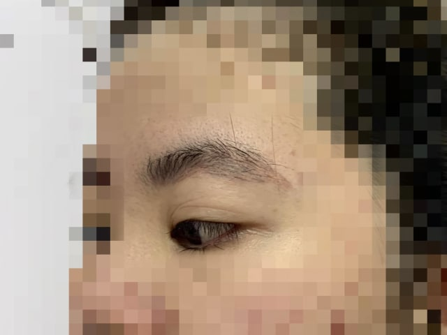 What are the available treatments and costs to remove eyebrow embroidery? (photo)
