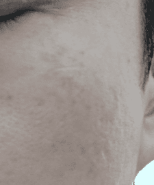 How to get rid of brown pigmentation at my cheeks? (photo)