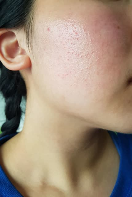 Why do I get tiny red bumps on my cheeks? (photo)