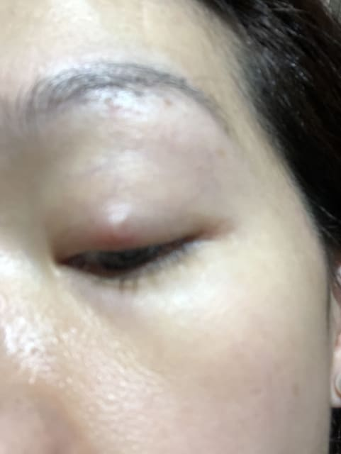 Chalazia at eyelid