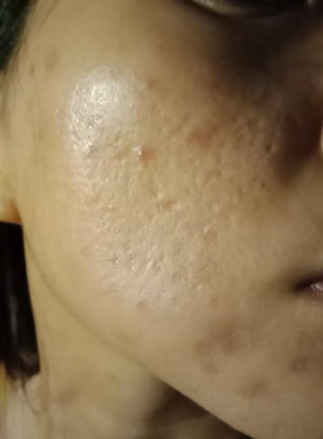 Acne scar asian woman