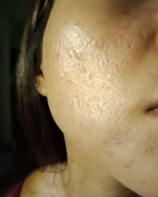 Asian skin acne scar