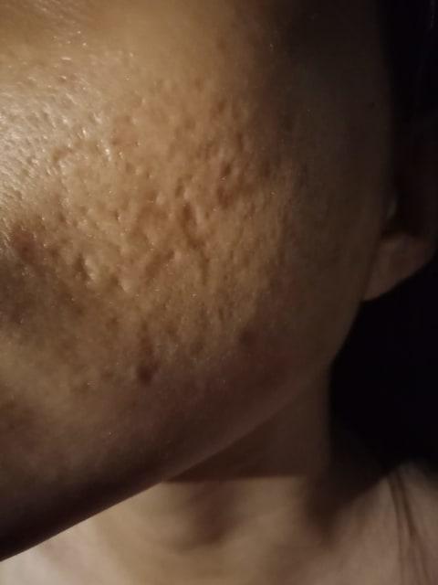 Deep pock mark acne scar