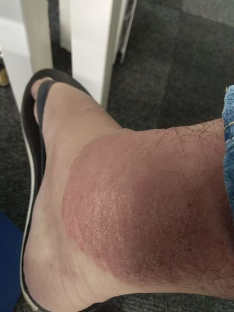 Red weeping eczema patch at ankle area