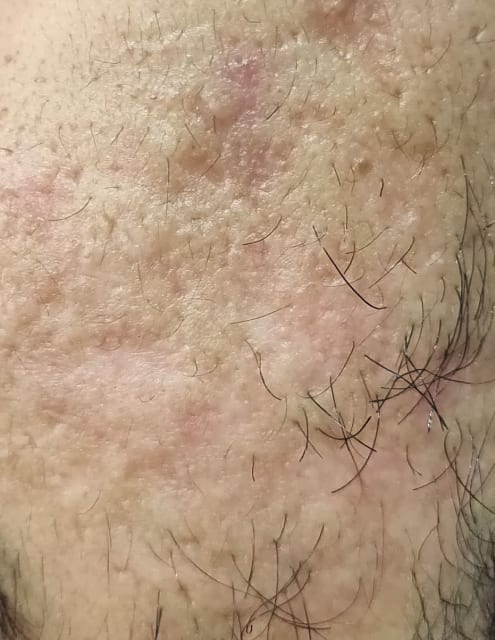 Atrophic acne scars, boxcar acne scars, rolling acne scars