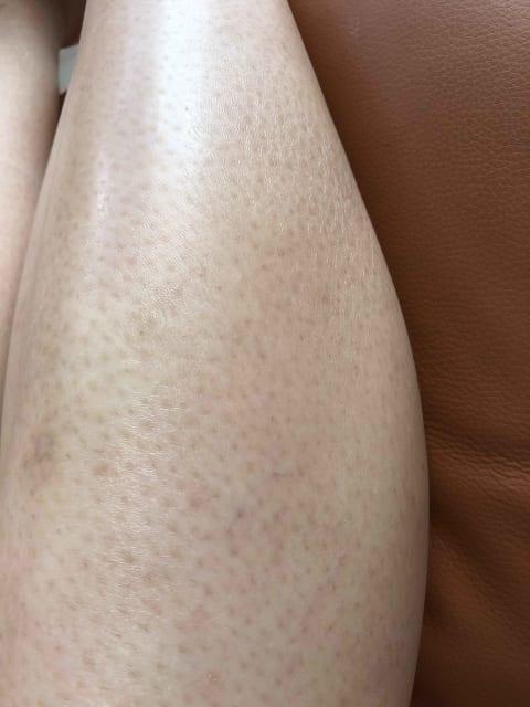Keratosis pilaris on legs