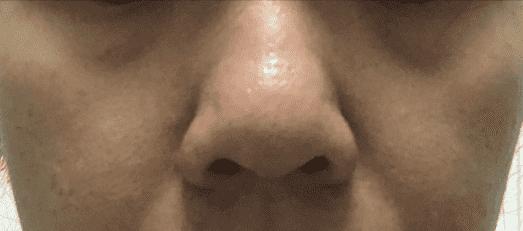Dark eye circle Asian skin