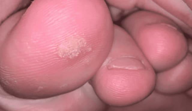 Growth on big toe