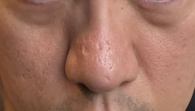 front view of acne scars on nose