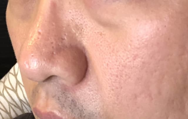 side view of acne scars on nose