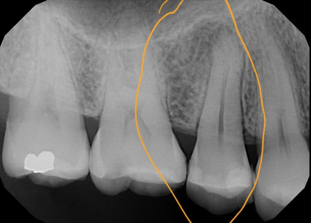 Root canal X Rays