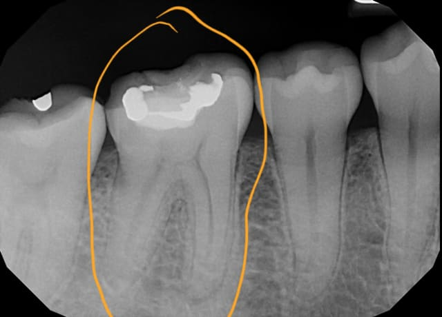 When is root canal treatment the best option for an infected tooth? (photo)