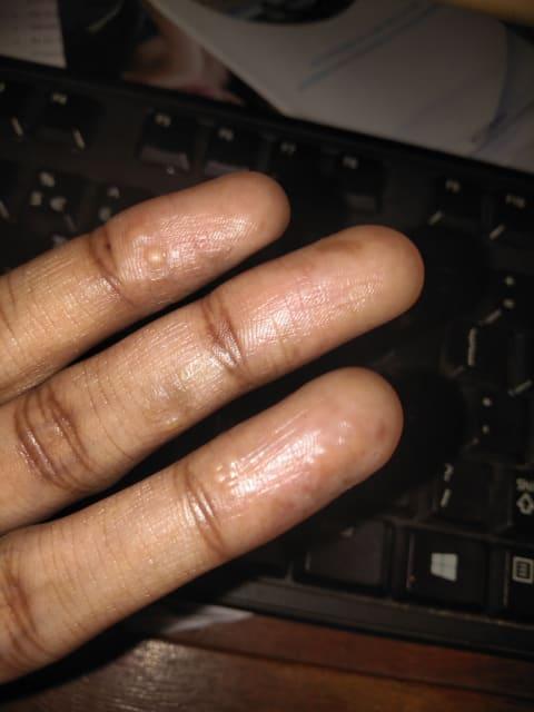 How do I get rid of dyshidrotic eczema on my hands?