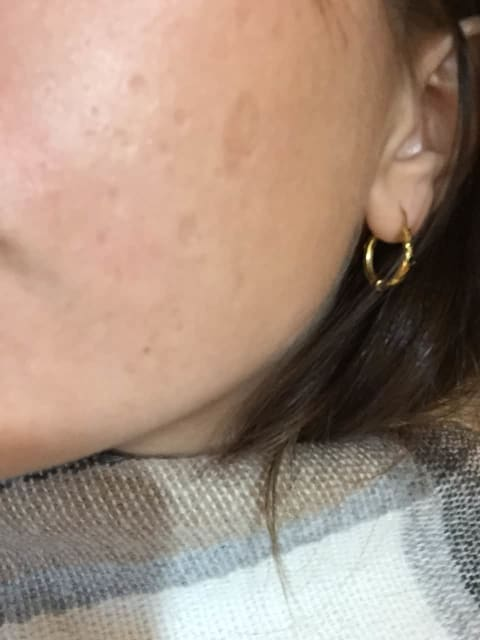 What are the treatment options for chickenpox scars? (photo)