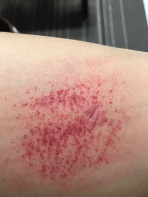 What could be the cause of recurring, itchy thigh rashes? (photo)