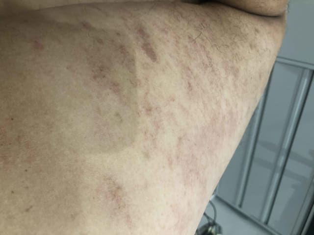 Red itchy rash in cold weather on body and arms