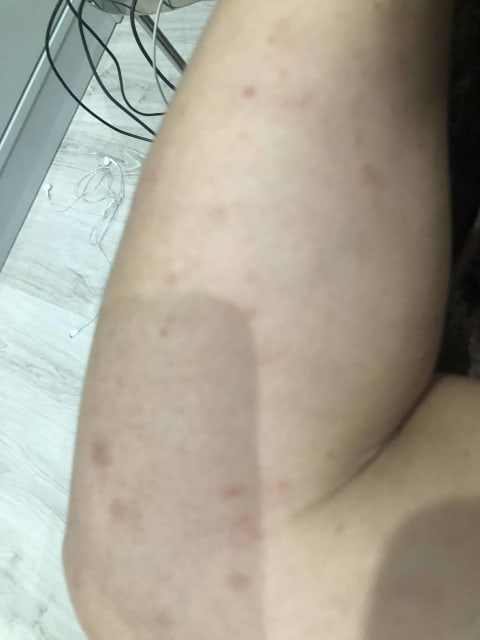 What could cause itchy, red rashes only after travelling to a country with cold weather, and how can it be treated? (photo)