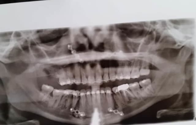 post jaw surgery plates and screws