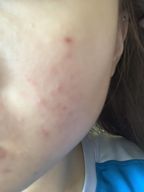 How are raised acne scars typically treated?