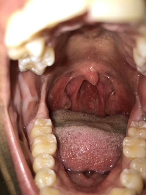 What could be possible causes of thick phlegm with fever? (photo)
