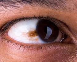 Are there non-surgical methods to remove a brown spot on the eye sclera?