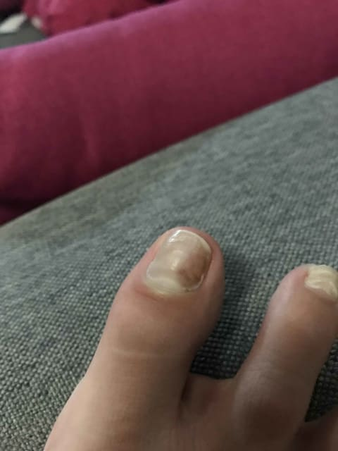 How long does loceryl treatment typically take to work on nail fungal infections? (photo)