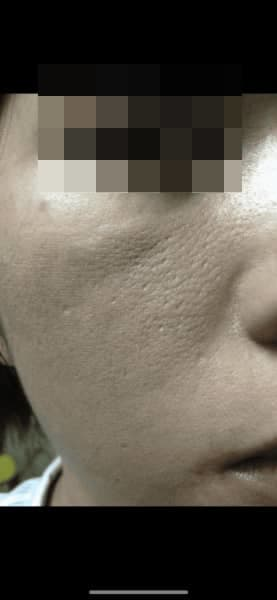 Can Rejuran Healer treat oily skin and big pores? (photo)